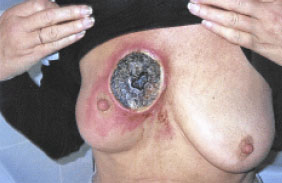 Genital Warts: Symptoms, Causes, and Complications