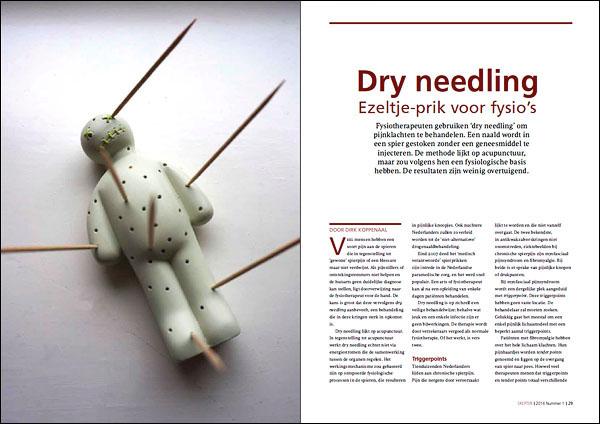 dry-needling-uit-Skepter